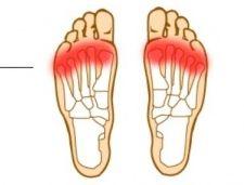 Metatarsalgia en corredores y no deportistas. Una lesión que puede trabajarse y mejorarse